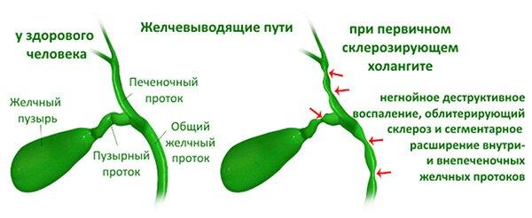 Схема проявлений холангита